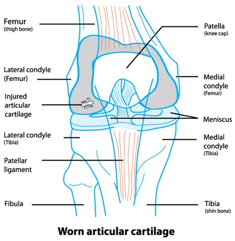cartilage diagram articular cartilage damage