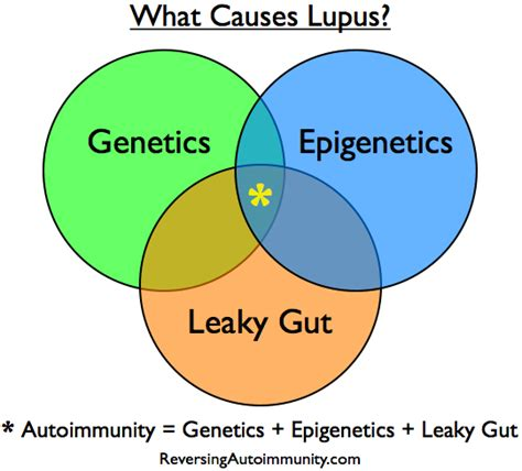 lupus can this autoimmune disease be treated naturally what causes lupus the relationship between genetics