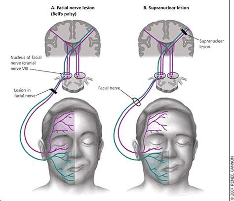 Bell Pasien yang sebaiknya anda tahu tentang wajah perot sebelah pmrehab