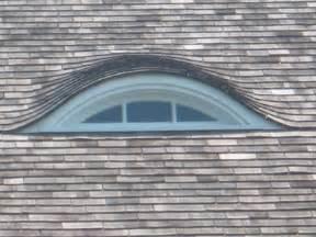 Eyelid Dormer Eyebrow Windows