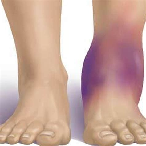 sprained ankle image gallery high ankle sprain