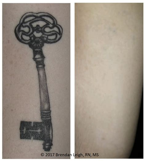 co2 tattoo removal before after photos austinpicosure a