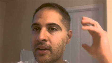 hair transplants in tj reviews hair transplant review 2014 seeing grt results youtube