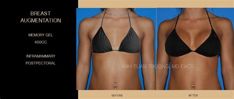 With The Breast Implants by Breast Augmentation Picutres