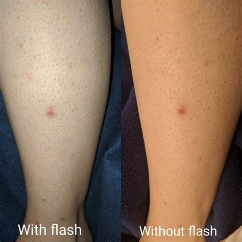 how to remove ingrown hair in upper thigh skin concerns had an ingrown hair on my leg i pulled it