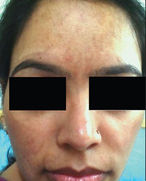 Melasma 5 In 1 etiopathogenesis of melasma sonthalia s sarkar r pigment int