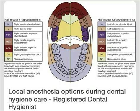 Local Dental Anethesia Detox by 1000 Ideas About Anesthesia Humor On