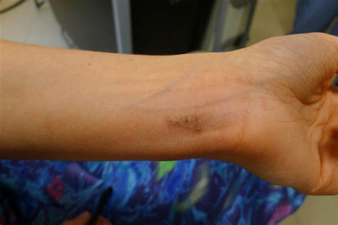 my tattoo removal experience 15 laser removal process pictures the