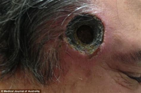don t use corrosive cancer salves escharotics
