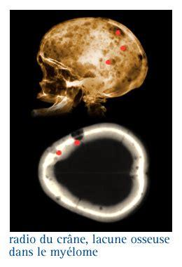 infocancer arcagy gineco localisations cancers du