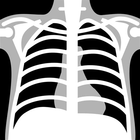 x ray pattern vector file x rays chest neg icon svg wikimedia commons