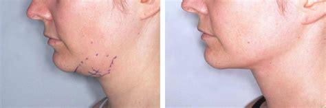 double chin tuck sew double chin liposuction barcelona aesthetic facial surgery