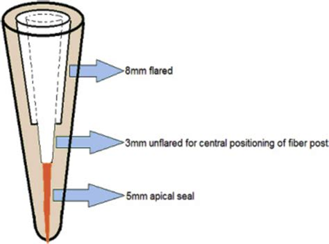 root canal diagram diagram showing root canal preparation