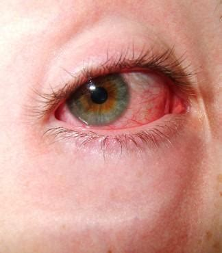 my eye is red watery and sensitive to light natural remedies for conjunctivitis lovetoknow