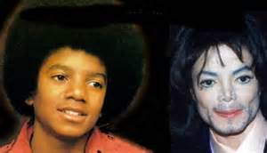 michael jackson skin color on michael jackson s nose and skin color