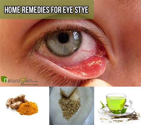 image gallery eye pimple
