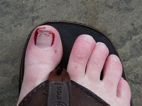 toenail bleeding panoramio photo of bleeding broken toe nail
