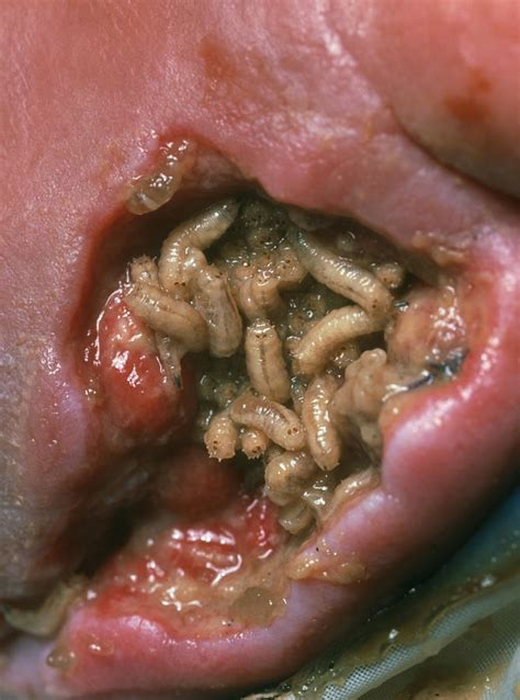 maggots in maggots lucilia sericata cleaning a wound photograph by volker steger
