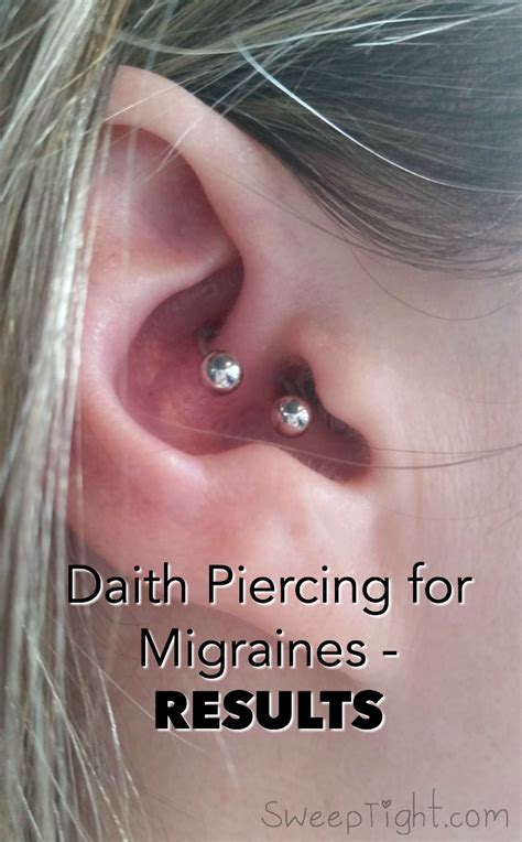 tattoo pain relief tips after over 20 years of suffering with severe migraine