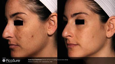 hunter laser tattoo removal ba picosure r geronemus acne