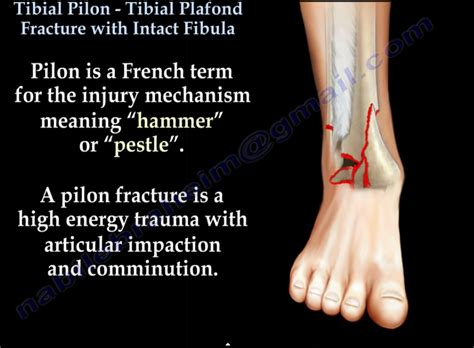 Tibial Plafond by Tibial Plafond Gecce Tackletarts Co