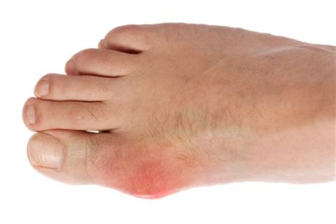 My Big Toe Discovery the ultimate gout diet and cookbook experiments on