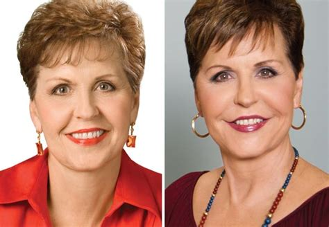 Has Surgery by Joyce Meyer Plastic Surgery Disaster Plastic