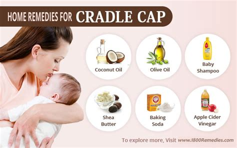 natural treatment for seborrheic dermatitis cradle cap cure cradle cap at home remedies for cradle cap