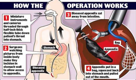 Avoid Appendix Surgery Detox by Appendicitis Causes Symptoms And Treatments Biggies Boxers