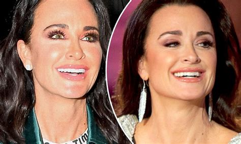 And Richards Get Sued by Kyle Richards Flashes Veneers After Smile Makeover Daily