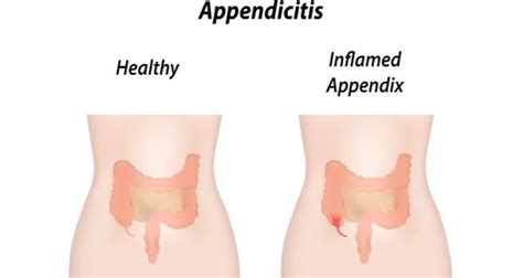 how to test for appendicitis at home 28 images get
