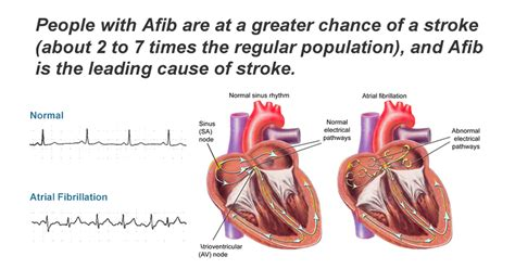 Detox And Afib by 6 Serious Signs Of Atrial Fibrillation And Stroke