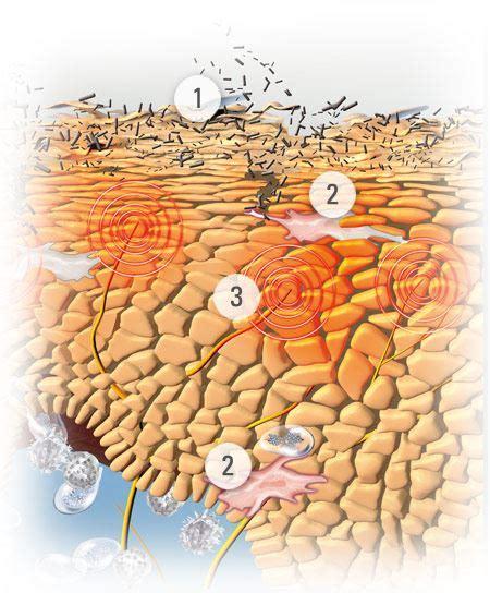 dermatite atopica bambini alimenti da evitare dermatite atopica sul corpo rimedi contro l eczema eucerin
