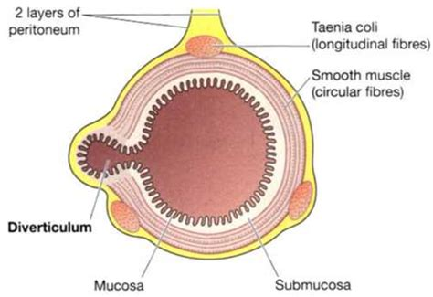 transverse section of small intestine tumours of the small and large intestines