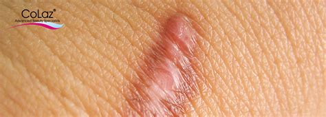 does tattoo removal leave scars 7 tips to prevent scarring