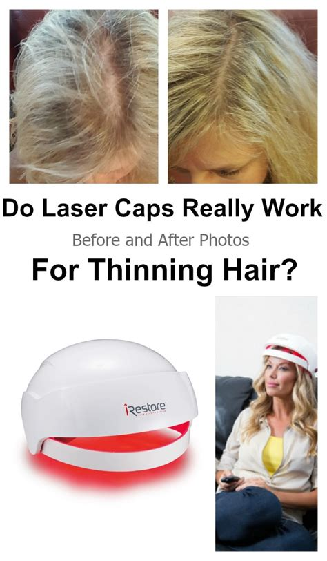 hair shops who work with thin balding hair in chicago does irestore work for women before after pictures laser