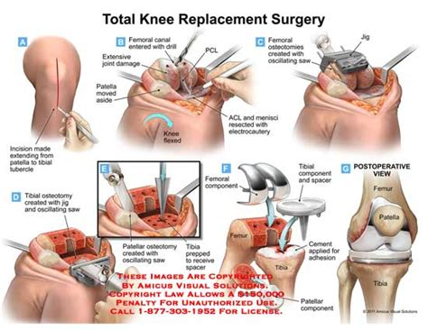 total knee replacement diagram alternatives to knee replacement surgery