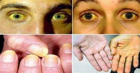 Obat Mata Kuning Dewasa obat herbal untuk penyakit kuning pada anak dan orang dewasa