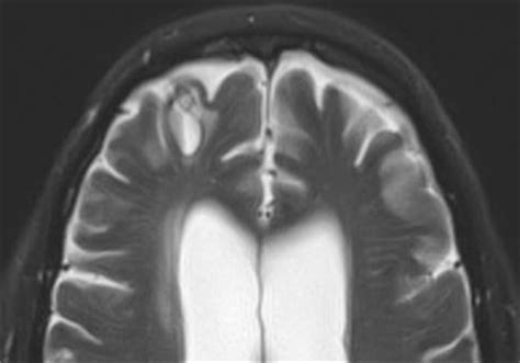 3 Tesla Mri Advantages And Disadvantages Chronic Hematomas Mri Questions And Answers In Mri
