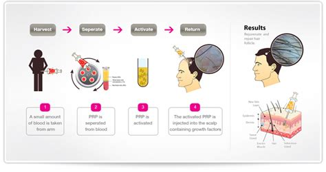 can platelet rich plasma stop hair loss and grow new hair dr reza mia prp hair restoration treatment