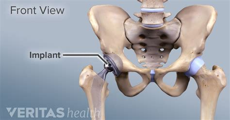 Mba Implants In Adults by All About Anterior Hip Replacement