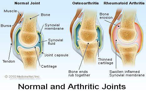 osteoarthritis treatment, diagnosis, causes, symptoms & signs
