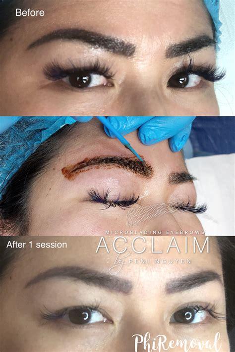 tattoo removal arlington tx eyebrow correction arlington microblading