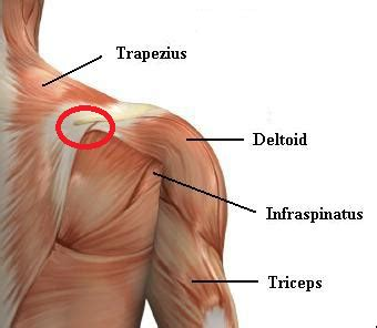 shoulder injury bench press treatment shoulder pain when benching shoulder pain during overhead press and other similar