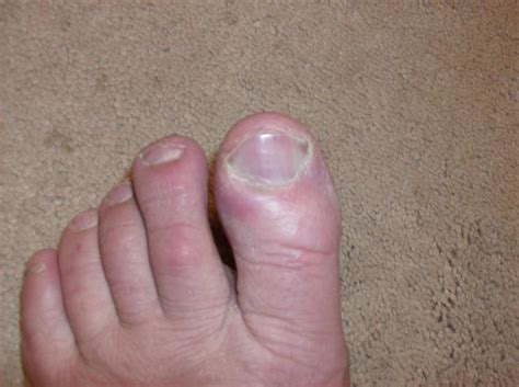 swollen toe swollen big toe gout forum ehealthforum