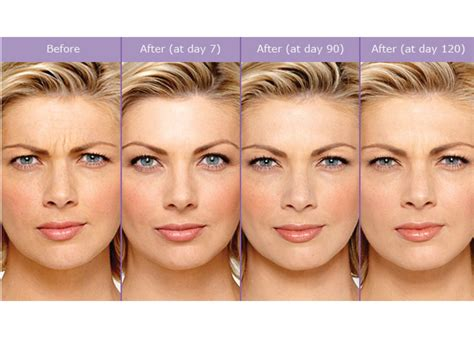 how long does botox last doctor answers tips realself ever wondered if botox works