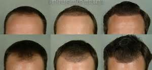 hair transplant month by month pictures hair restoration surgery results from a 2254 graft