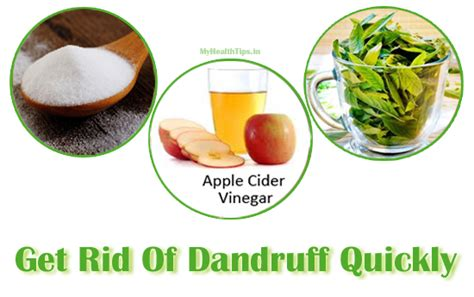 12 ways to get rid of dandruff at home health tips