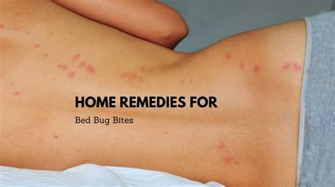 bed bugs bites home remedy taraba home review