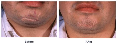 plastic surgery for c section scar scar revision by charlotte facial plastic surgeon dr freeman